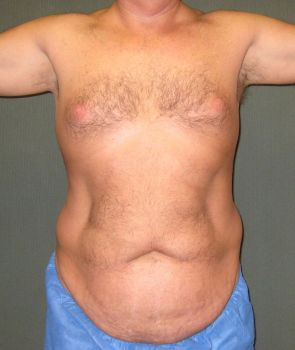 Tummy Tuck Patient Photo - Case 111 - before view-