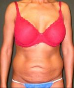 Liposuction - Case 112 - Before