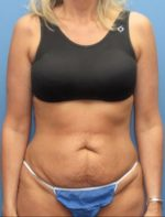 Tummy Tuck - Case 116 - Before