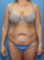 Tummy Tuck - Case 118 - Before