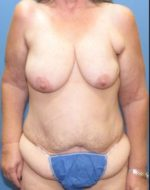 Tummy Tuck - Case 123 - Before