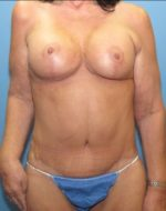 Tummy Tuck - Case 123 - After