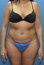 Tummy Tuck - Case 126 - Before
