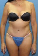 Tummy Tuck - Case 126 - After