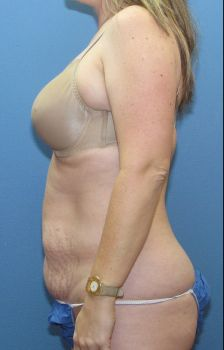 Liposuction Patient Photo - Case 114 - before view-1