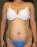 Liposuction - Case 128 - Before