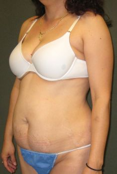 Liposuction Patient Photo - Case 128 - before view-2
