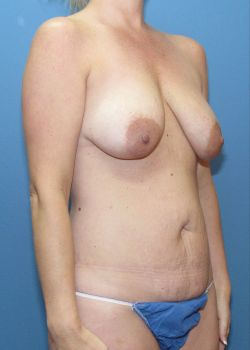 Tummy Tuck Patient Photo - Case 119 - before view-2