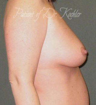 Breast Augmentation/Lift Patient Photo - Case 63 - before view-1