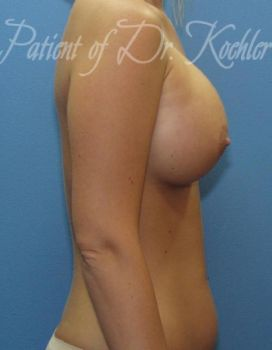 Breast Augmentation Patient Photo - Case 16 - after view-1