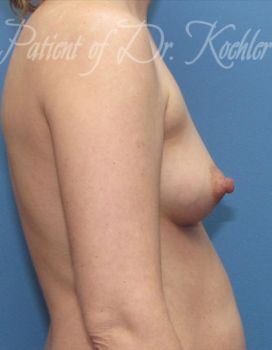 Breast Augmentation Patient Photo - Case 31 - before view-1