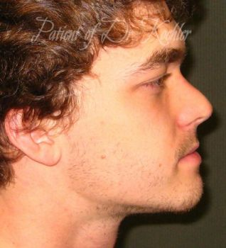 Rhinoplasty Patient Photo - Case 91 - after view-2
