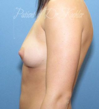 Breast Augmentation Patient Photo - Case 50 - before view-1