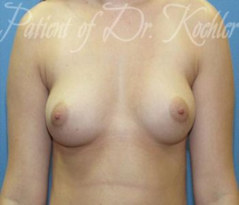 Breast Augmentation Patient Photo - Case 43 - before view-