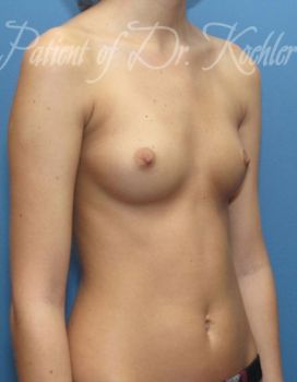Breast Augmentation Patient Photo - Case 24 - before view-2