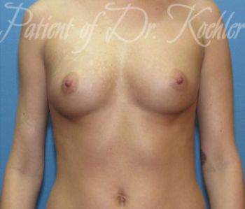 Breast Augmentation Patient Photo - Case 37 - before view-
