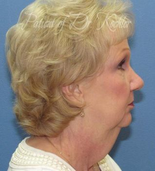 Facelift Patient Photo - Case 79 - before view-1