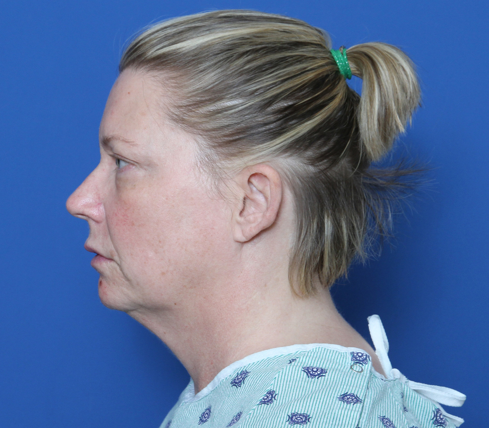 Brow Lift Patient Photo - Case 179 - before view-1