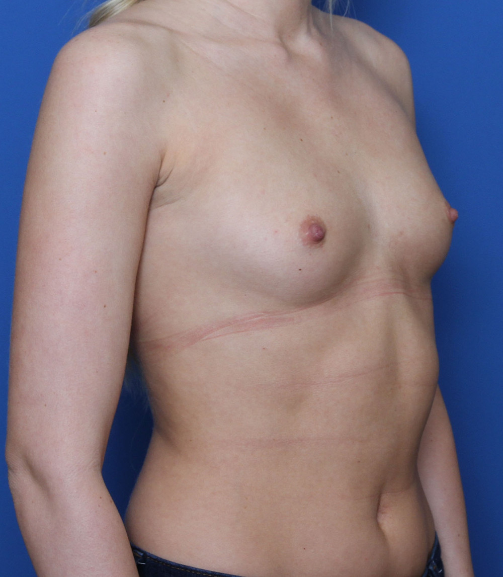 Breast Augmentation Patient Photo - Case 195 - before view-1
