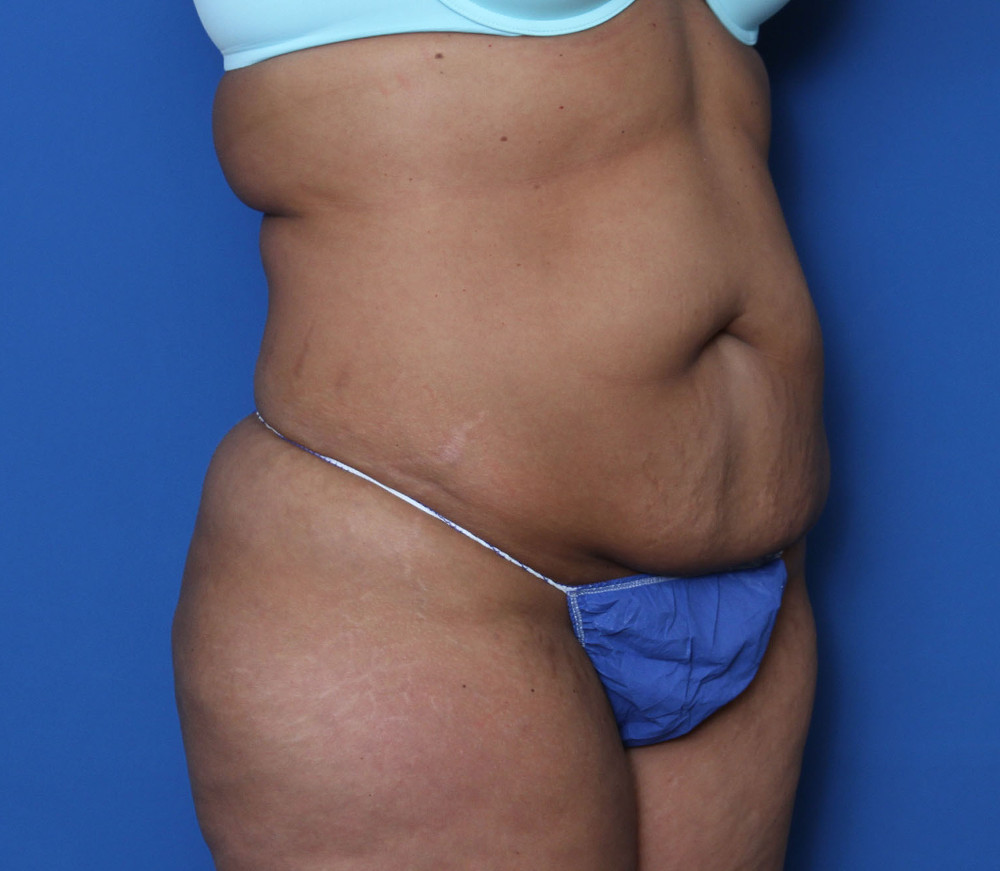 Tummy Tuck Patient Photo - Case 138 - before view-1