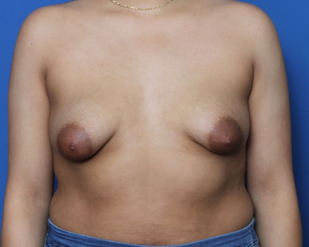 Breast Augmentation/Lift Patient Photo - Case 210 - before view-0