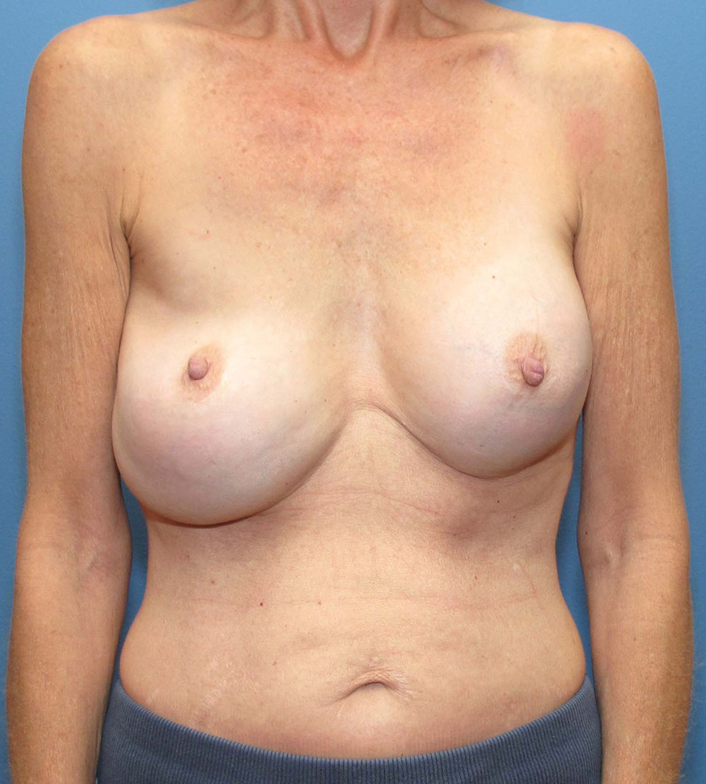 Breast Revision Patient Photo - Case 213 - before view-