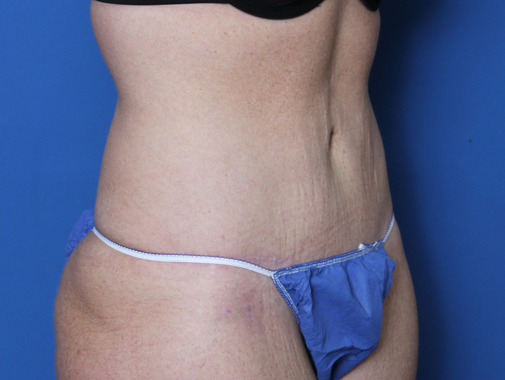 Tummy Tuck Patient Photo - Case 137 - after view-1