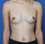 Breast Augmentation - Case 194 - Before