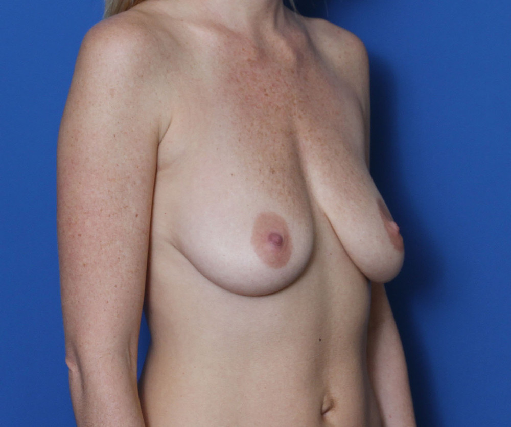 Breast Augmentation/Lift Patient Photo - Case 204 - before view-1
