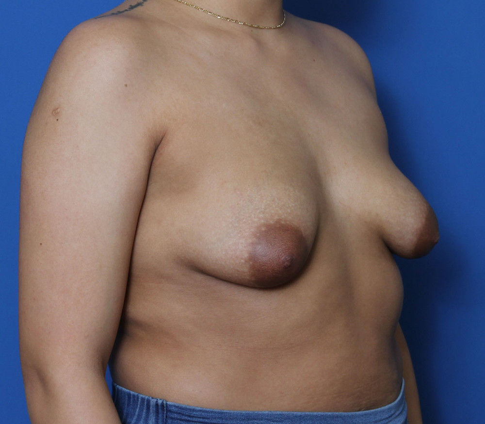 Breast Augmentation/Lift Patient Photo - Case 210 - before view-1