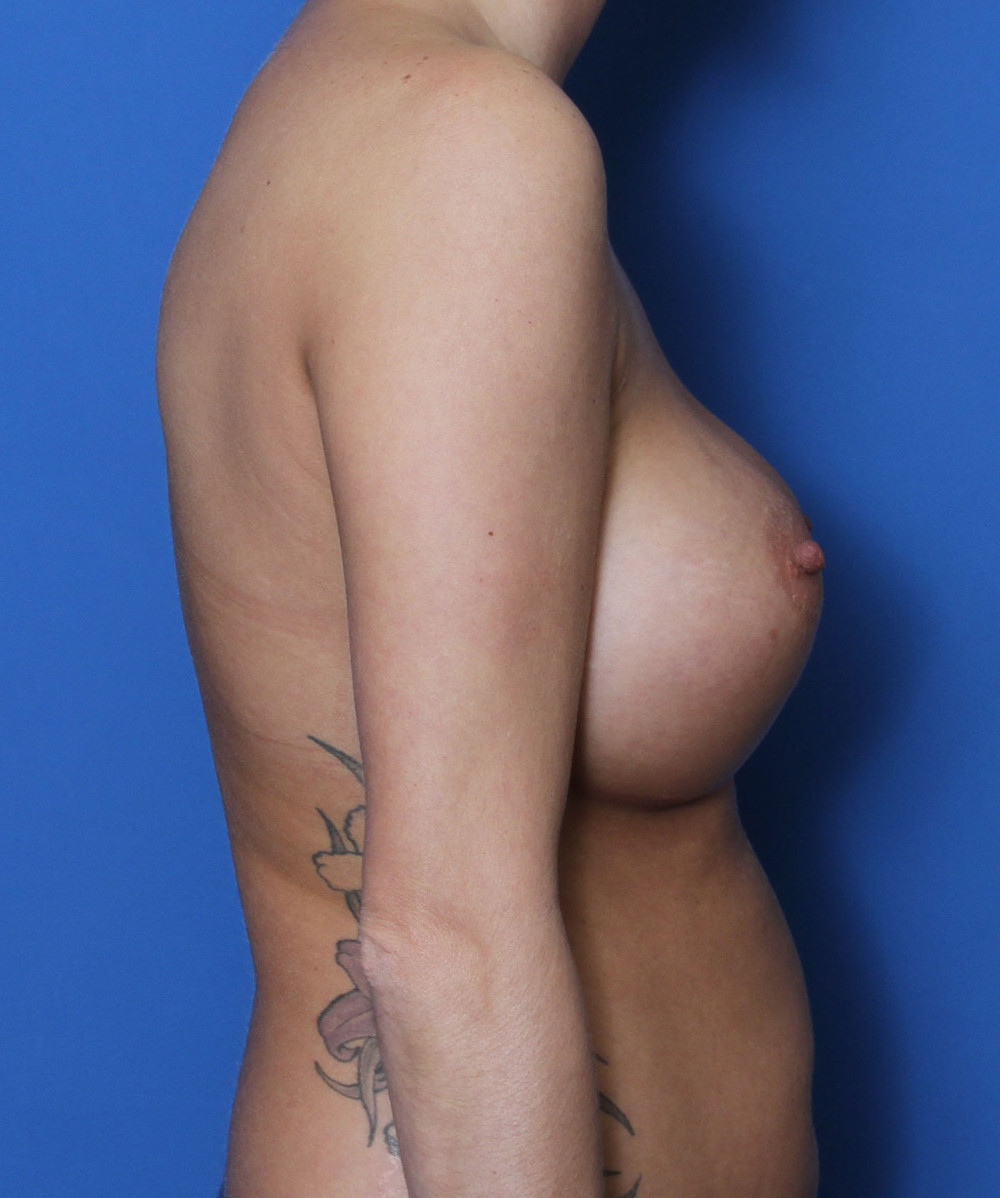 Breast Revision Patient Photo - Case 216 - before view-2