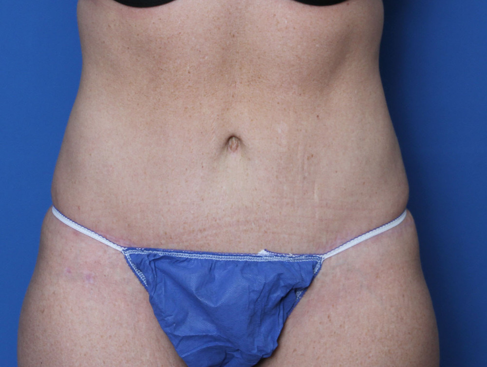 Tummy Tuck Patient Photo - Case 137 - after view