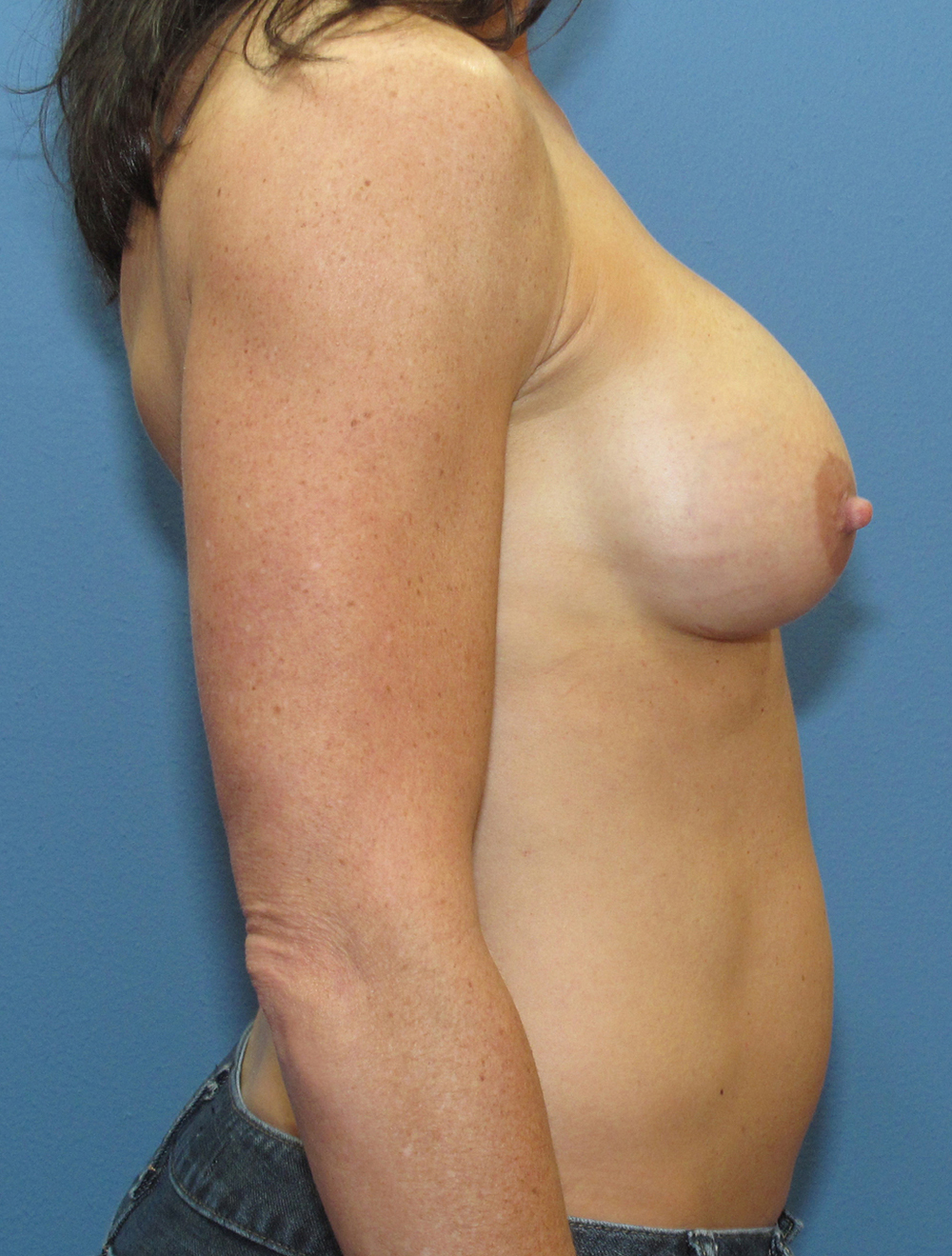 Breast Revision Patient Photo - Case 212 - after view-2