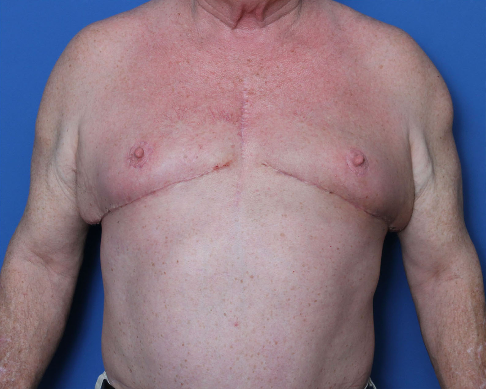 Gynecomastia Patient Photo - Case 5550 - after view-0
