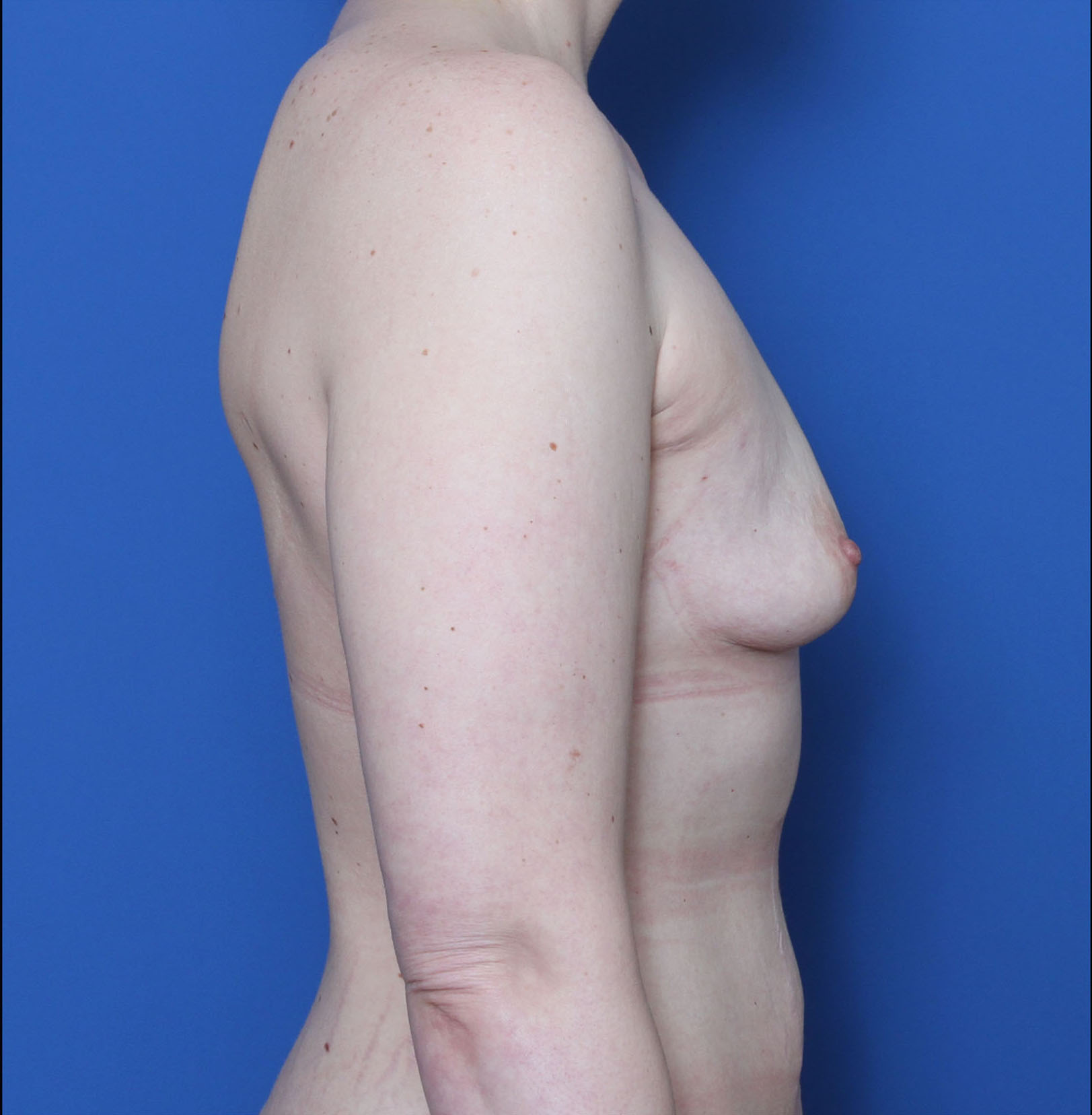 Breast Augmentation Patient Photo - Case 6978 - before view-2