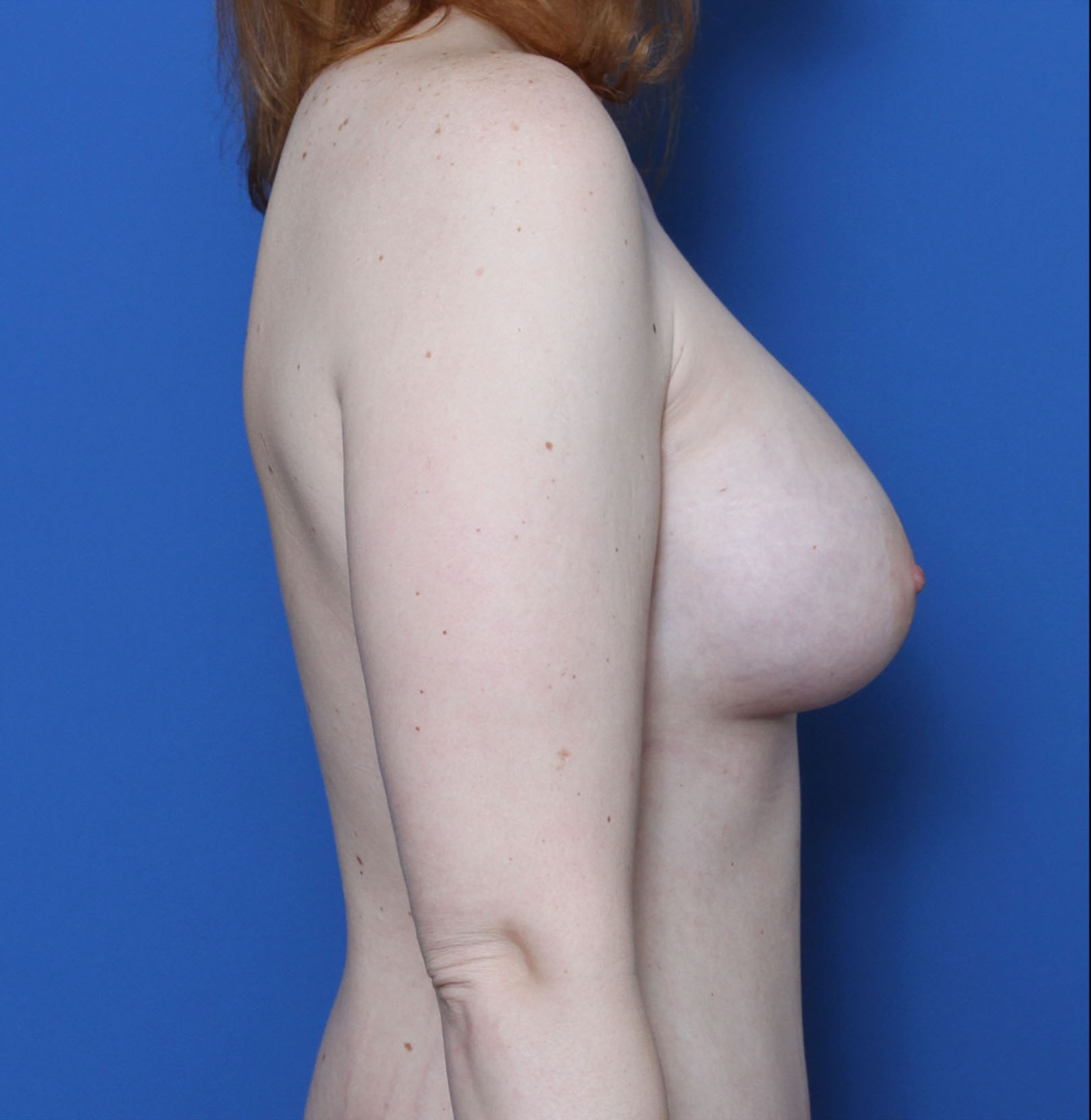 Breast Augmentation Patient Photo - Case 6978 - after view-2