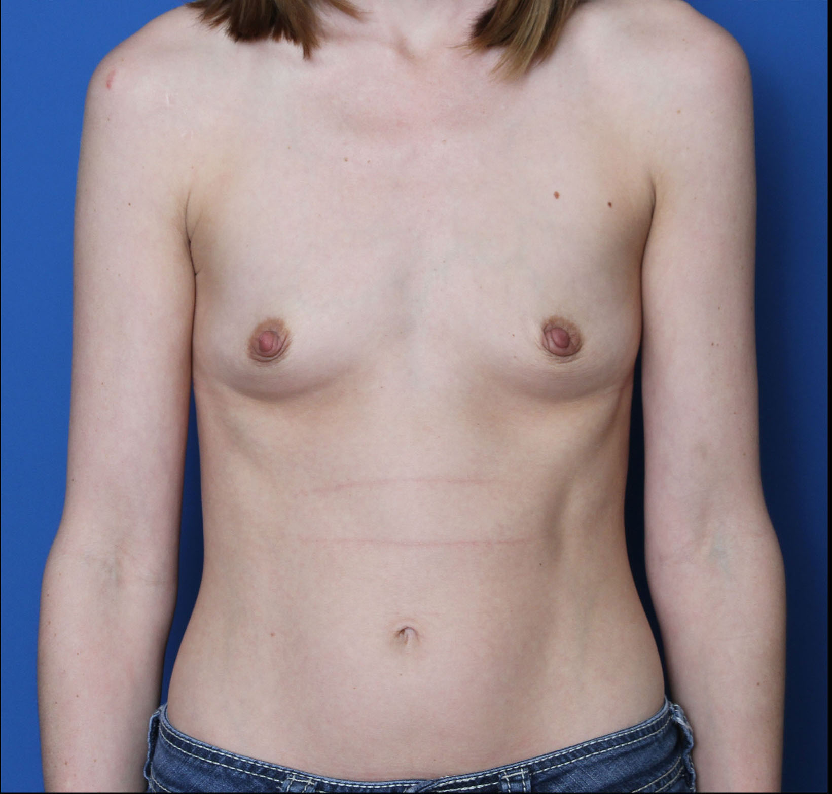 Breast Augmentation Patient Photo - Case MM9206 - before view-