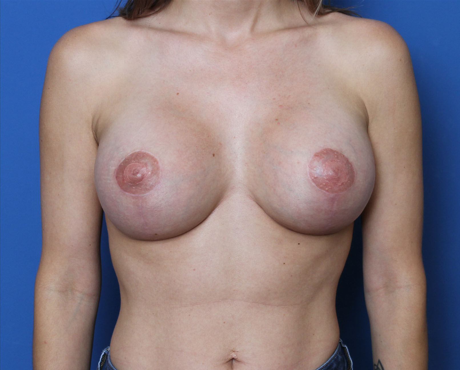Breast Augmentation/Lift Patient Photo - Case MM0302 - after view