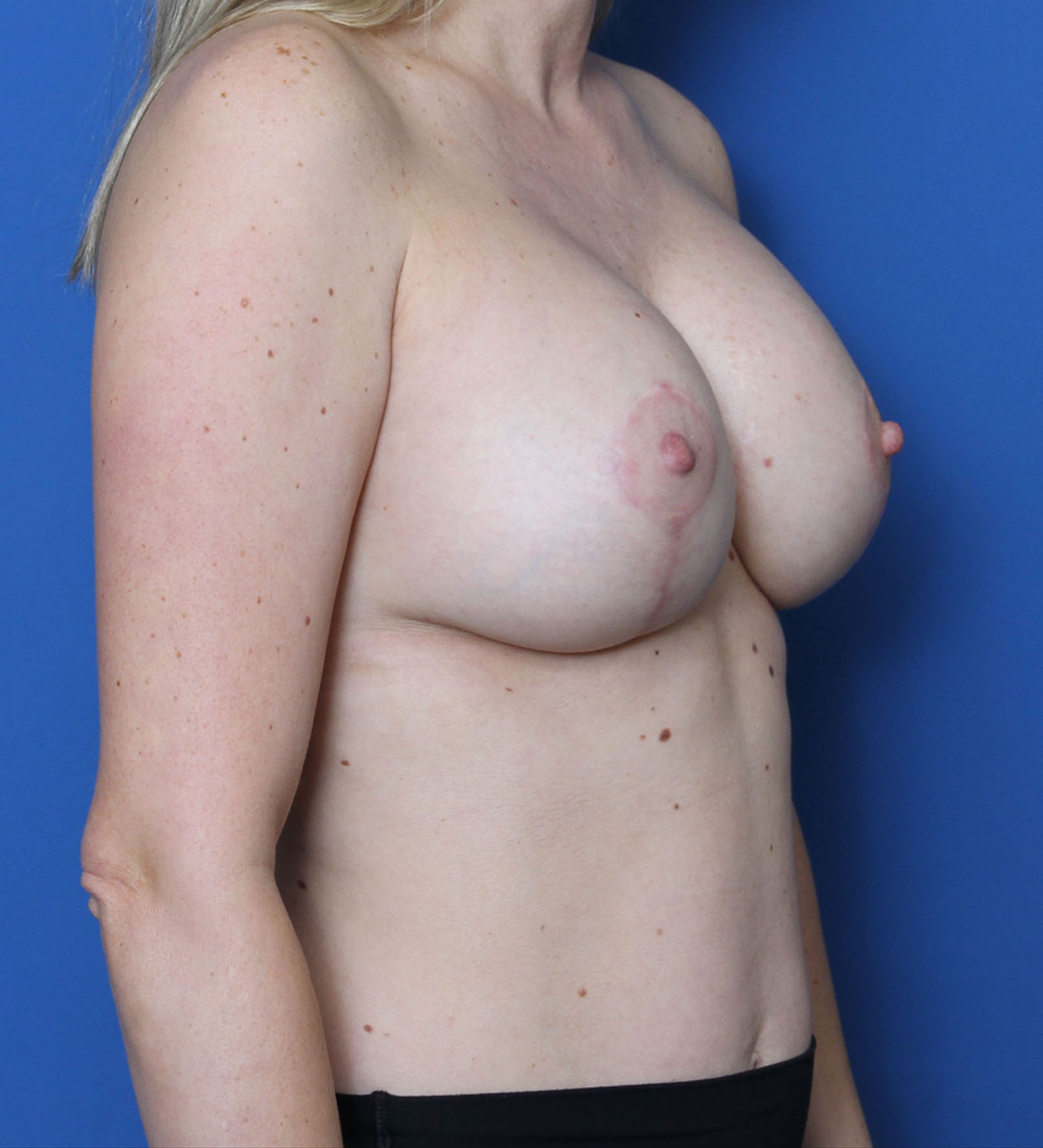 Breast Augmentation/Lift Patient Photo - Case MM9915 - after view-1