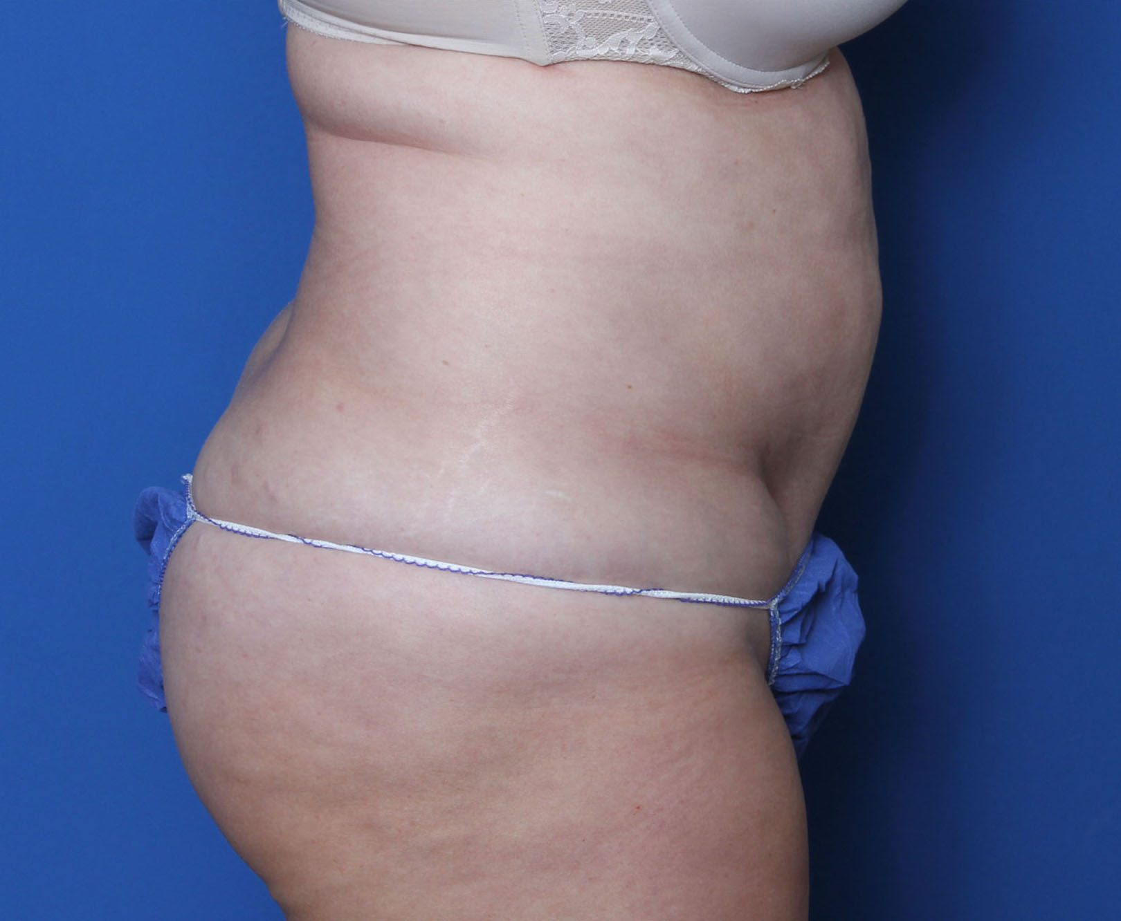 Liposuction Patient Photo - Case 9144 - before view-2