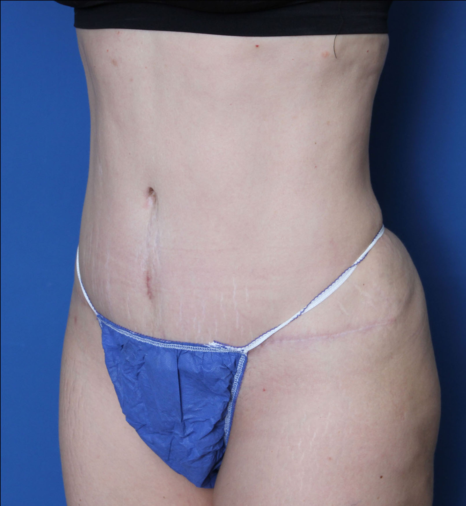 Liposuction Patient Photo - Case MM5325 - after view-1