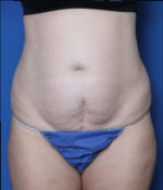 Liposuction - Case MM5325 - Before