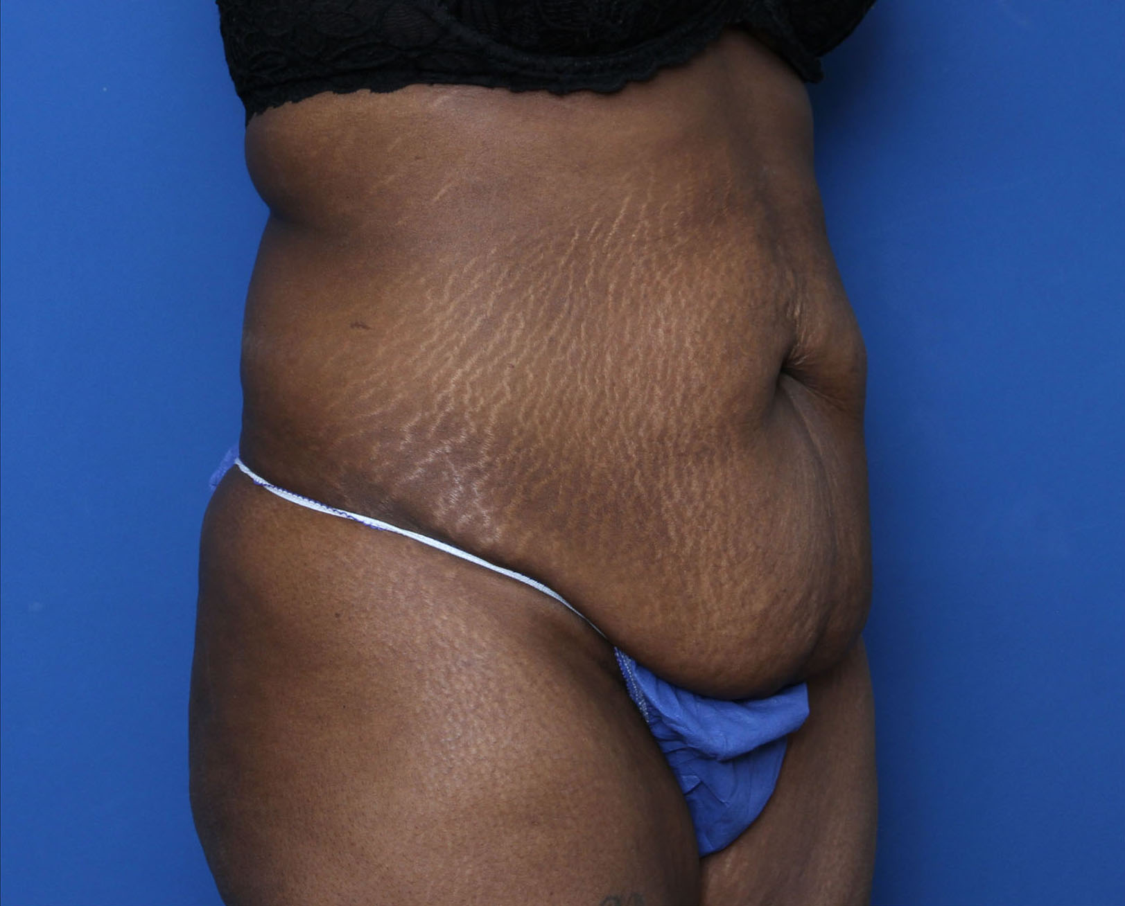 Liposuction Patient Photo - Case 5339 - before view-1