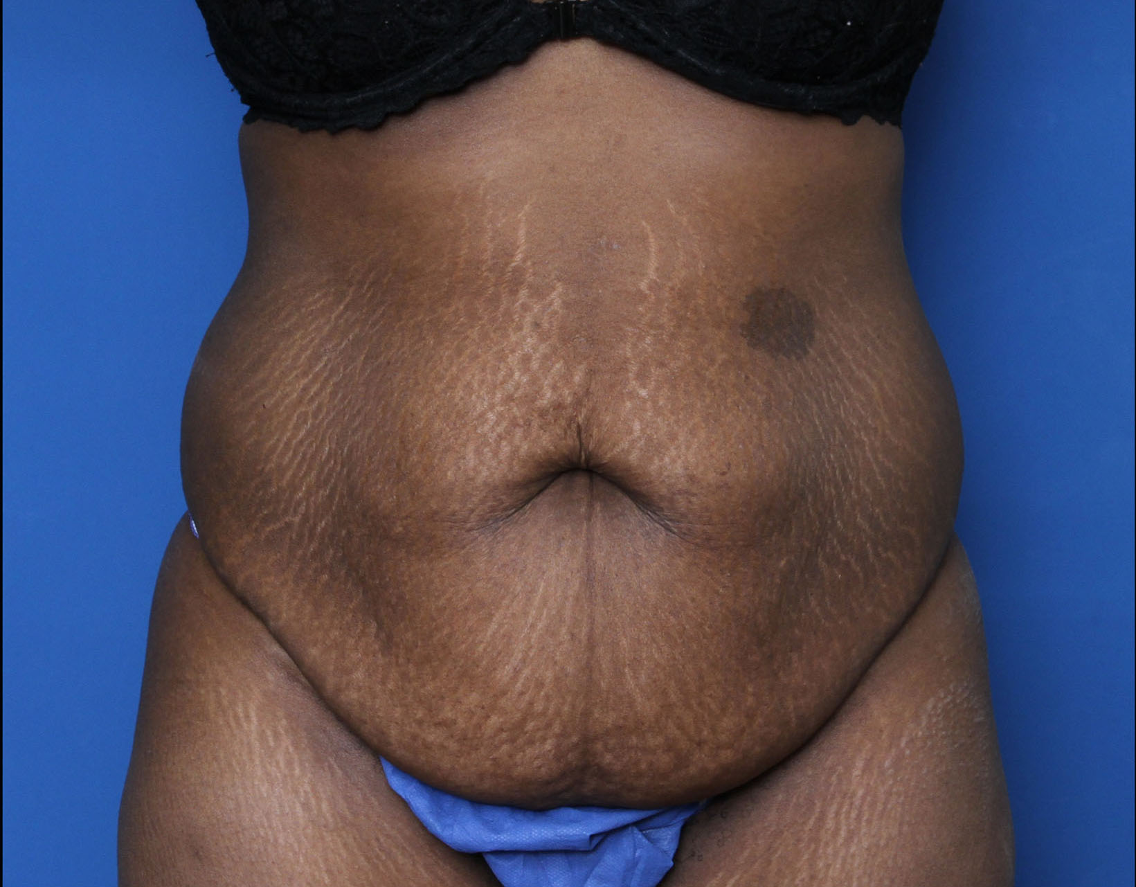 Liposuction Patient Photo - Case 5339 - before view-