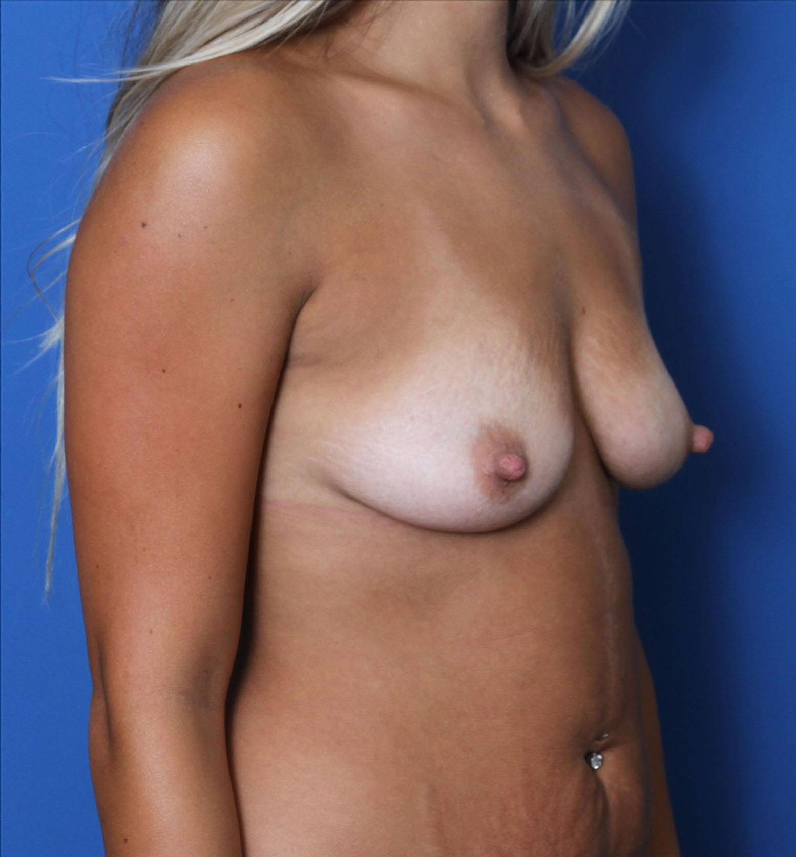 Breast Augmentation Patient Photo - Case MM8110 - before view-1