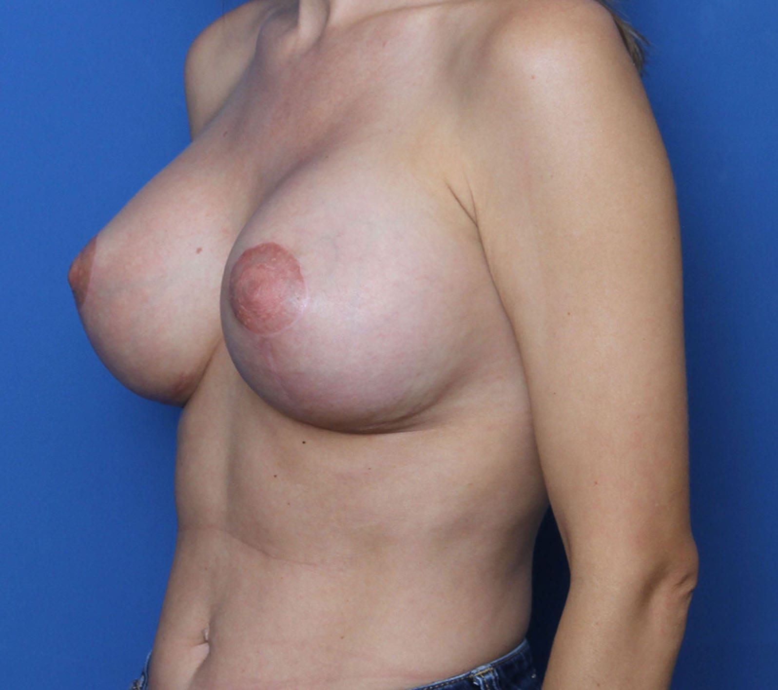 Breast Augmentation/Lift Patient Photo - Case MM0302 - after view-1