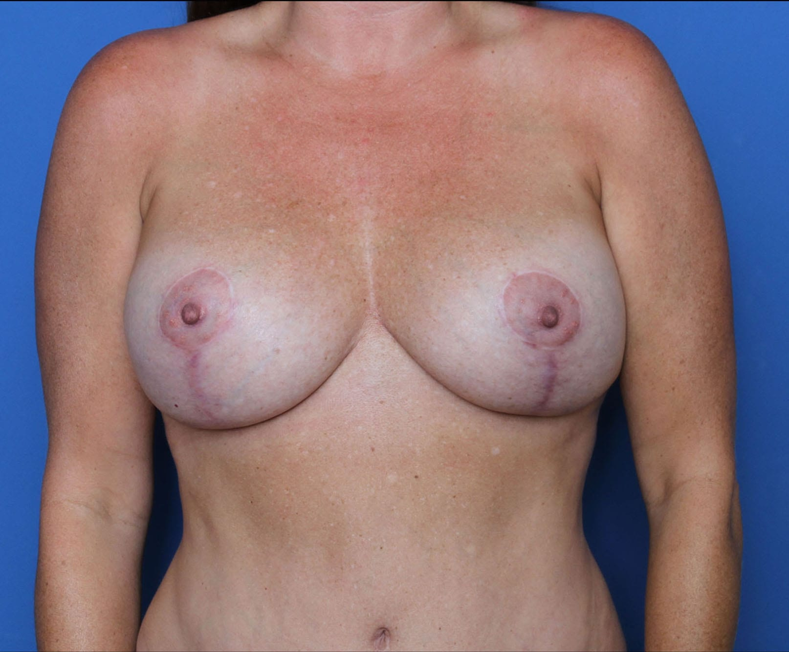 Breast Lift Patient Photo - Case MM1068 - after view