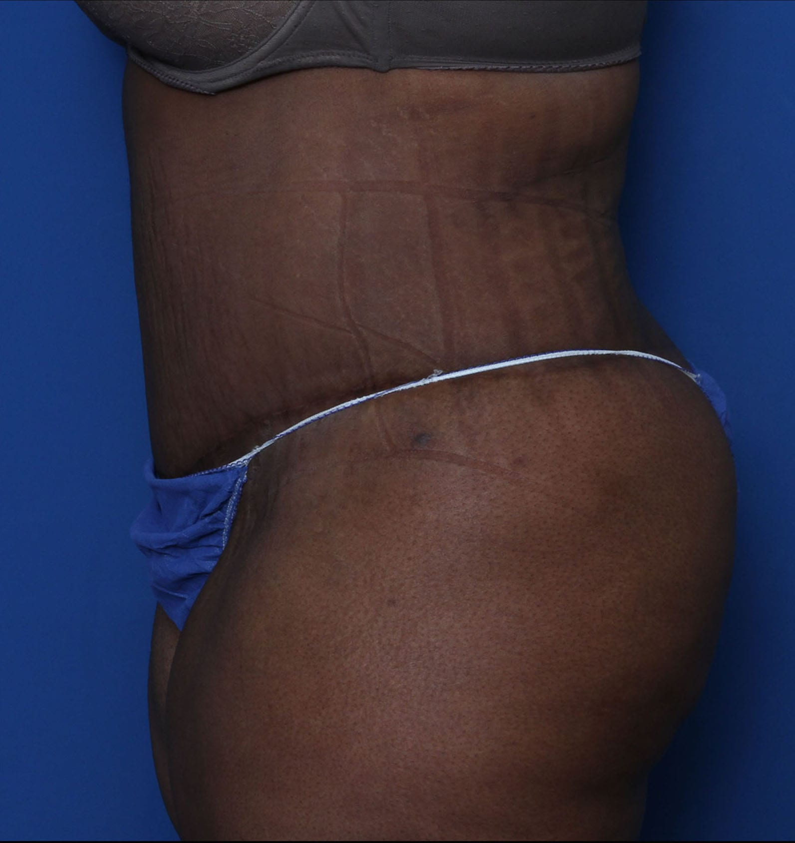 Belt Lipectomy Patient Photo - Case MM1110 - after view-2