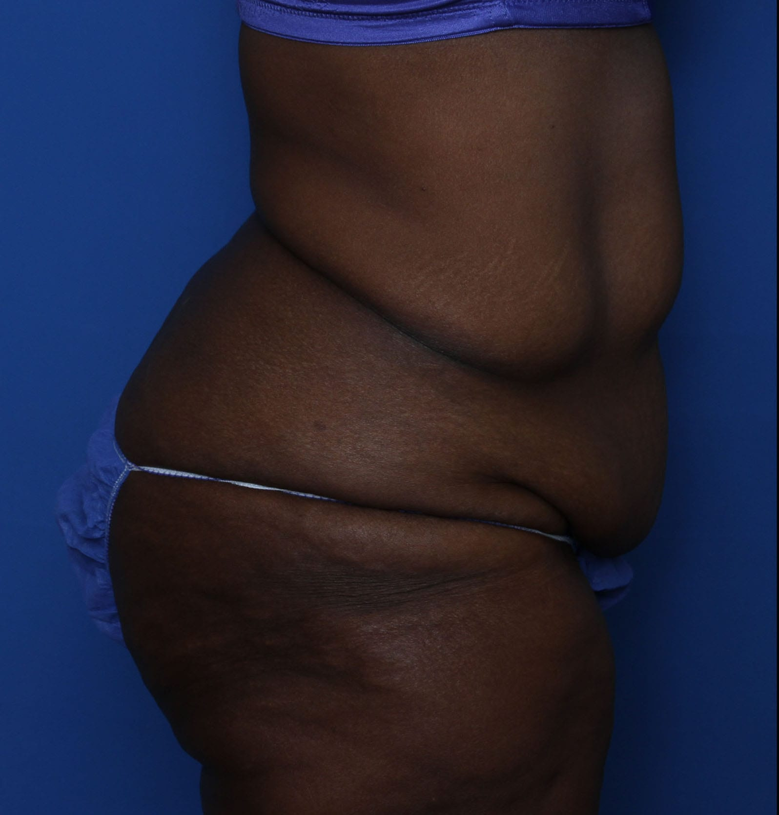Belt Lipectomy Patient Photo - Case MM5930 - before view-2