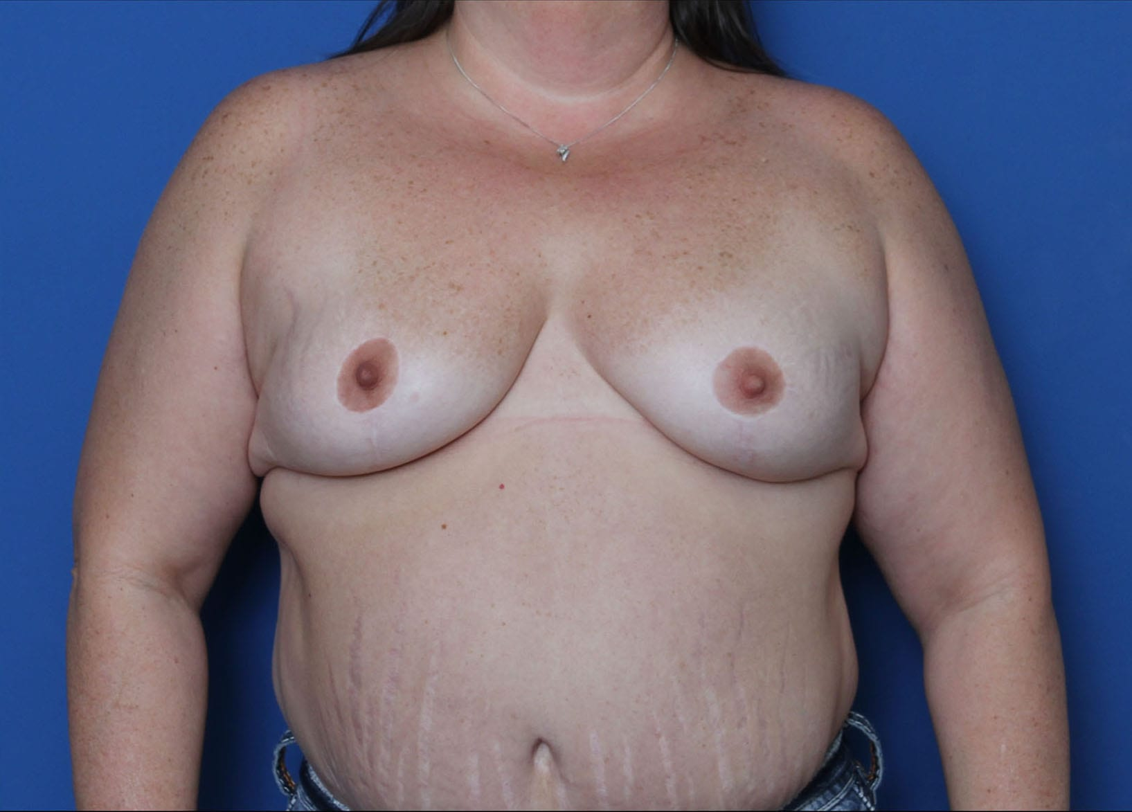 Breast Lift Patient Photo - Case 6708 - after view